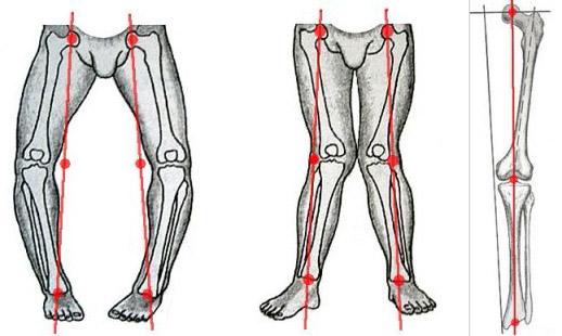 krzywe nogi