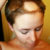 Wypadanie włosów – Bardzo ważna jest diagnoza